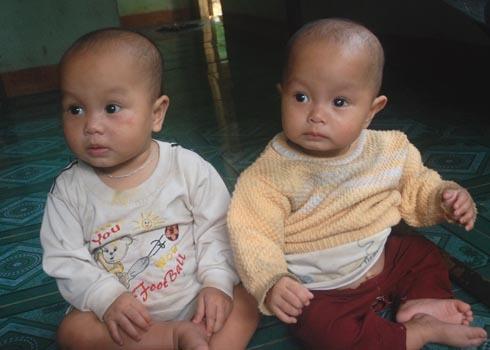 Hai bé song sinh Phạm Thị Bích Phi và Phạm Thị Bích Nhung. Ảnh: Trí Tín