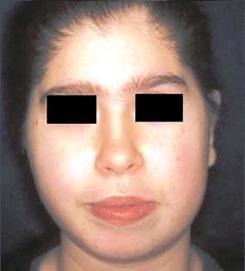 Dị dạng mặt vì hội chứng miễn dịch gây teo cơ