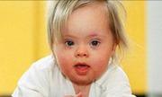 Thụ tinh ống nghiệm có thể tăng nguy cơ trẻ bị Down