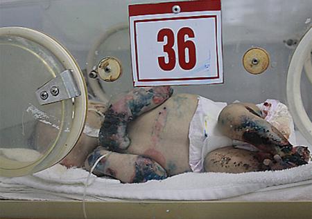 Một bệnh nhi bị ly thượng bì bọng nước tại Bệnh viện Nhi trung ương. Ảnh: Minh Thùy.