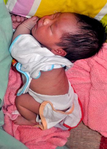 Phần mặt và lưng bé trai- con của chị Hoanh bị thâm đỏ vì nghi nữ hộ sinh tắm gây bỏng. Ảnh: Trí Tín.
