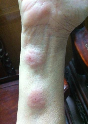 Vết thương do bọ xít đốt hút máu sưng to, bầm tím. Ảnh: Tuyết Mai.