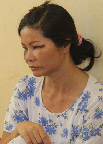 Bà Nguyễn Thị Tý bị kiến khoang đốt sưng mặt. Ảnh: Đăng Nguyên.