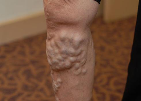 Nguy cơ mắc tĩnh mạch chân cao. Ảnh: ST