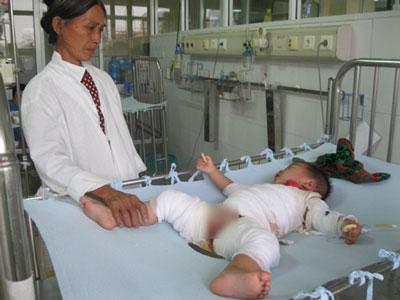 Giúp đỡ bé gái 2 tuổi bị bỏng nặng