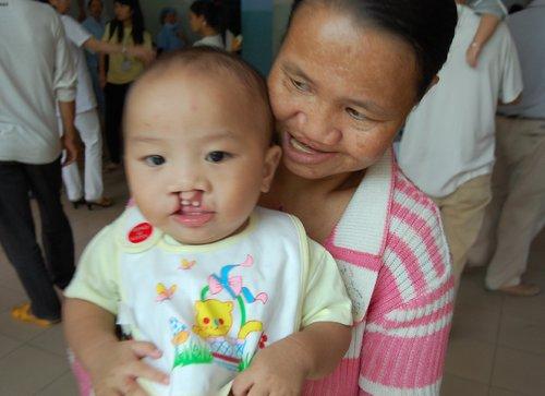 bé Trần Nhân Kiệt cùng mẹ là Trần Thị Hữu Hương, quê ở Kiên Giang tìm chương trình Phẫu thuật nụ cười lần thứ 3 sau hai lần đến Tiền Giang và An Giang, nhưng đều bị hoãn mổ vì không đảm bảo sức khỏe