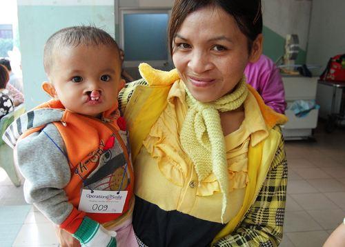 Bé Trần Thanh Tùng cùng ba mẹ lặn lội từ Đắc Lắc để mổ môi nhưng em cũng chưa may mắn được vá môi. Bé Tùng bị hở môi do mẹ em uống thuốc chữa cảm cúm khi mang thai em gần hai tháng mà không hay biết.