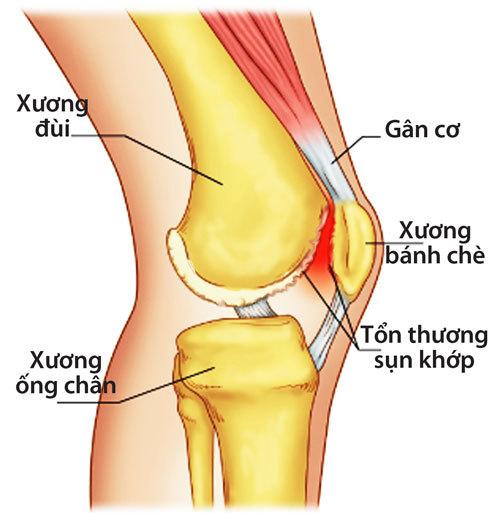 Xuongkhop-1371993446_500x0.jpg