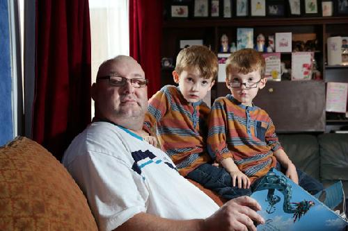 Ian Tibbetts hiện có thể nhìn thấy 2 con sau phẫu thuật cấy răng vào mắt. Ảnh: parentdish.co.uk)