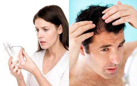 Sau nhiều năm nghiên cứu, giới khoa học toàn cầu đã xác định nguyên nhân chính gây rụng tóc ở nam và nữ là khác nhau.