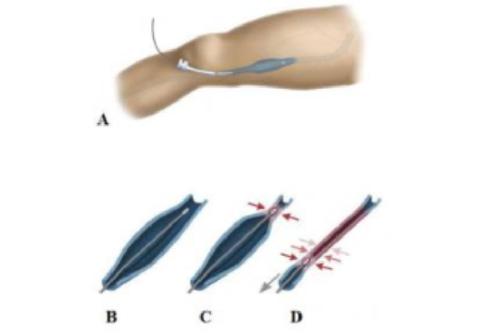 Hình minh họa phương pháp loại bỏ tĩnh mạch hiển bị suy bằng sóng cao tần hay laser nội mạch. A. Một dây dẫn (catheter) được xuyên qua da và luồn vào trong lòng tĩnh mạch bị suy giãn. B. Phần đầu dây dẫn có thể phát nhiệt từ nguồn sóng cao tần hay tia laser. C. Đầu của dây dẫn phát nhiệt làm tổn thương nội mạc của tĩnh mạch và thành tĩnh mạch. D. Đầu dây dẫn vừa phát nhiệt vừa được kéo về phía dưới làm cả đoạn tĩnh mạch từ trên xuống dưới bị co nhỏ, xơ hoá và bị tắc.
