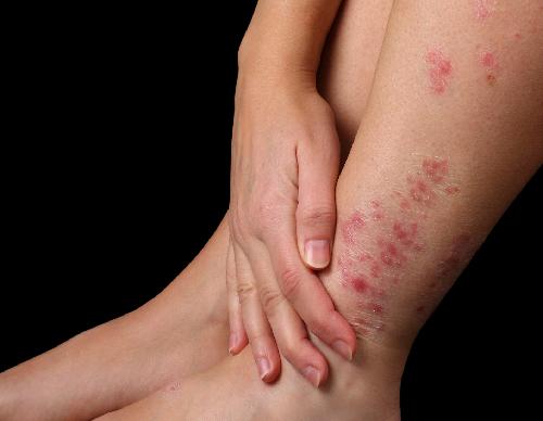 Bệnh vảy nến là một chứng rối loạn gây ra các bản vá màu đỏ, có vảy trên da. Ảnh: entrepadres