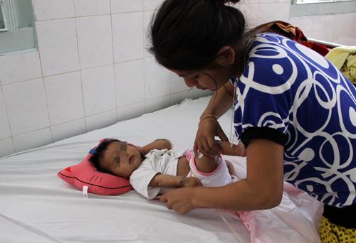Cứu bé 2 tháng hoại thư bìu hiếm gặp ở Gia Lai