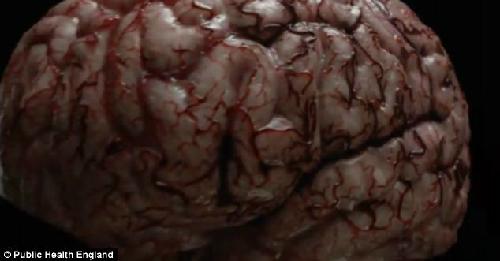 Máu 'bẩn', chứa đầy chất độc, đi vào trung tâm, sau đó được bơm lên não. Ảnh: UK News.