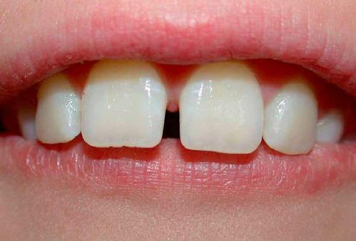 Dental-Diastema-4662-1388818913.jpg