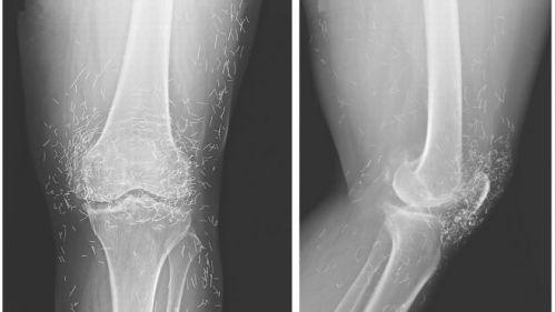Ảnh. Hình ảnh X-quang cho thấy hàng trăm mũi kim bằng vàng được cho là để lại có chủ đích nhằm mục đích kích thích giảm đau. (livescience.com)