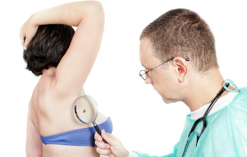 Đau và ngứa da có thể là dấu hiệu ung thư