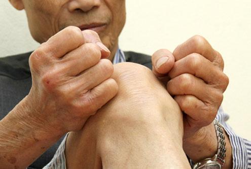 Nhận diện các triệu chứng của bệnh thoái hóa khớp