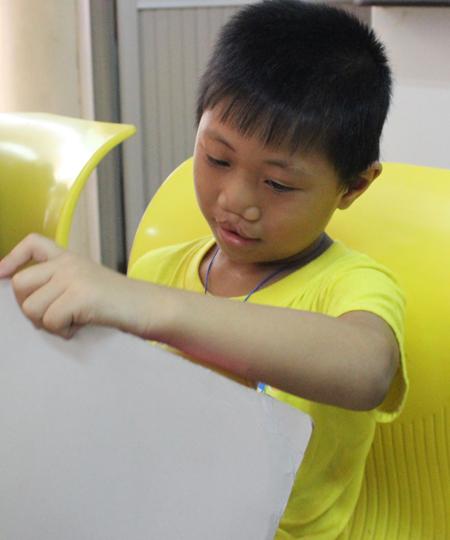 Mẹ là công nhân tại Bình Chánh, bố bỏ đi khi chào đời được vài ngày tuổi, Mai Sơn (5 tuổi) đã trải qua 3 lần mổ. Lần này Sơn không  hề sợ sệt và háo hức phẫu thuật để được đẹp trai hơn.
