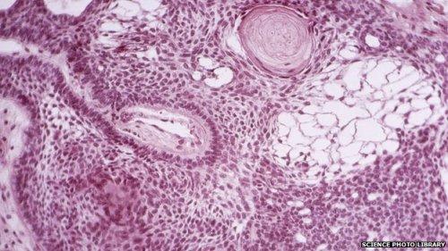 Các khối u não thường cứng và khó tiếp cận. Tế bào gốc được cho là một cách hữu hiệu để tiếp cận và tiêu diệt ung thư. Ảnh: BBC