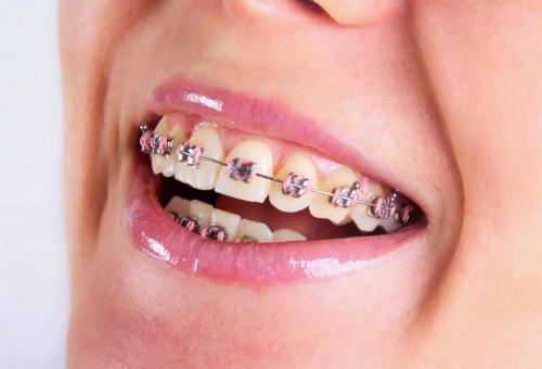 Niềng răng không đúng chỉ định có thể gây hại răng. Ảnh minh họa.