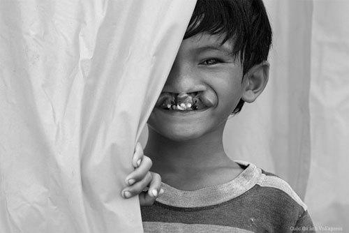 """Từ tác phẩm """"Đằng sau nụ cười"""" tham dự Cuộc thi Ảnh Nghệ thuật VnExpress, cuộc sống của cậu bé dị tật sứt môi hở vòm đã được bước sang một trang mới rạng rỡ hơn."""