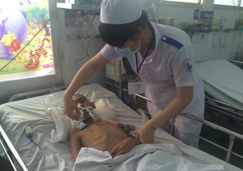 Bệnh nhi điều trị viêm não tại BV Nhi đồng 1 (TP HCM). Ảnh: Lê Phương.