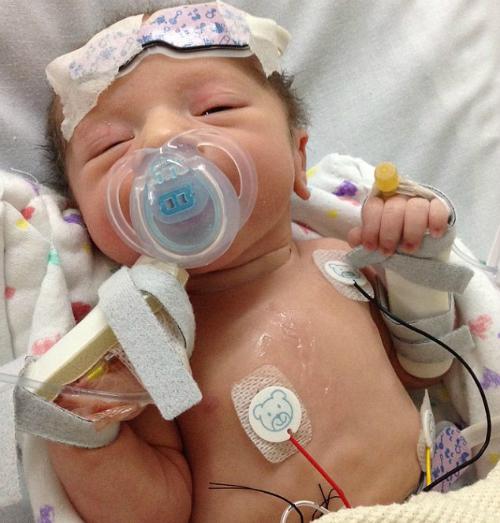 Hầu hết thời gian kể từ khi chào đời Jack Stevens phải sống trong bệnh viện. Bé mắc phải Hội chứng suy tim trái bẩm sinh. Ảnh: dailynewsleaks