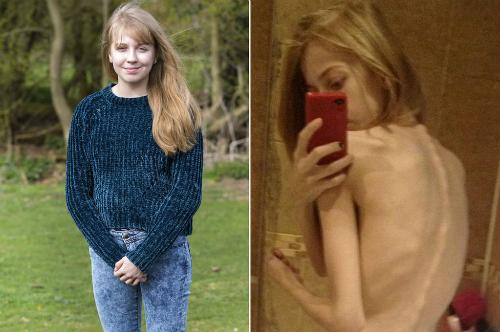 Thiếu nữ giảm cân để có thân hình giống thần tượng