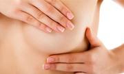 Tái tạo vú và điều trị phù tay voi sau mổ ung thư