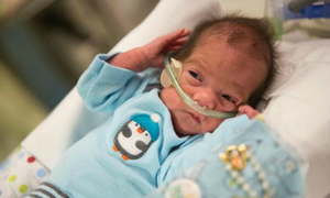 Em bé chào đời từ người mẹ đã chết não gần 2 tháng