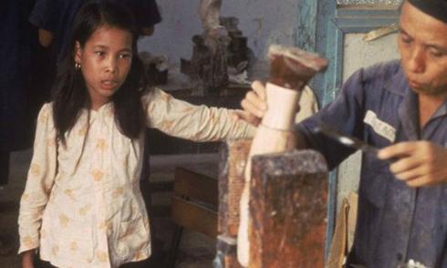 Số phận cô bé 12 tuổi cụt chân trong chiến tranh