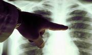 Ung thư phổi khó phát hiện kể cả giai đoạn sớm
