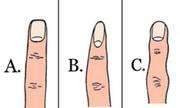 Hình dáng ngón trỏ tiết lộ tính cách của bạn