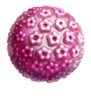 HPV virus.