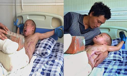 Ông bố đơn thân một mình chăm con trong bệnh viện. Ảnh: Sohu.
