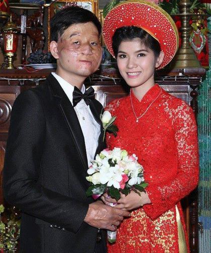 Cặp chồng xấu, vợ xinh sau bốn năm kết hôn, giờ ra sao? - 2
