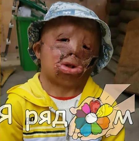 Cậu bé 5 tuổi viết thư xin ông già Noel một khuôn mặt mới - ảnh 1