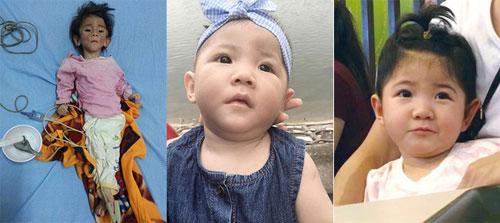 Bé Thào Yến Nhi lần lượt từ trái sang phải: Khi em suy dinh dưỡng lúc 14 tháng tuổi chỉ nặng 3,5kg, lúc được mẹ Tâm chăm sóc 3 tháng và hiện tại. Ảnh: TT.