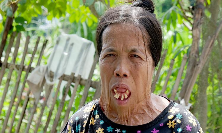 Những lần phẫu thuật chữa bỏng ngày nhỏkhiến da mặt kéo căng các phía, làm lộ hết răng của bà Sáu. Ảnh: HảiHiền.