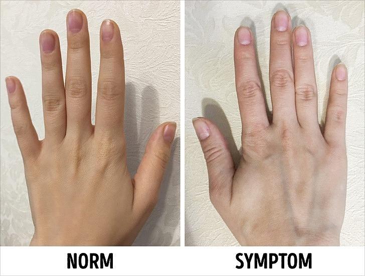 Khi da tay của bạn trở nên khô và mỏng hơn, các mạch máu nổi lên rõ hơn, đây cũng là một dấu hiệu lão hóa khác. Ảnh: Brightside.